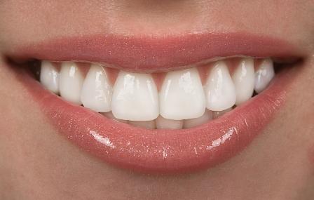 stomatologicheskie-viniry