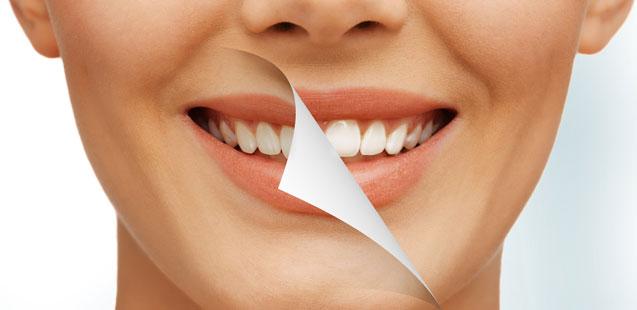 metody-otbelivaniya-zubov