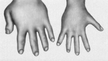 bolezni-izmenyayushhie-vneshnost-cheloveka