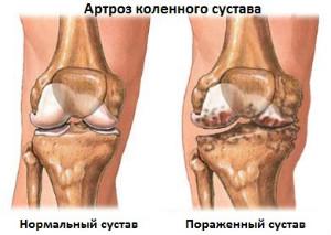 zabolevanie-kolennogo-sustava