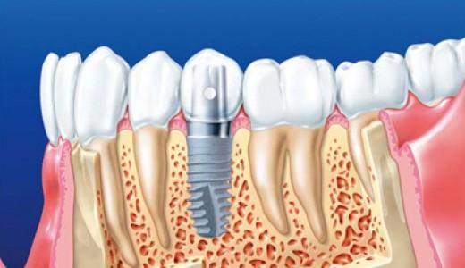 implant-ili-protez