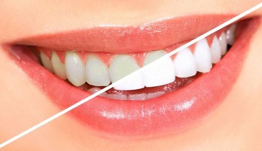bezopasnoe-otbelivanie-zubov